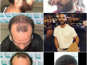 Sule Hair Transplant Before After 2.11.2020