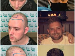 Sule Hair Transplant Before After 3.11.2020