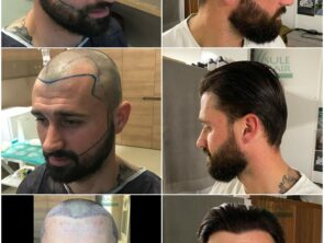Sule Hair Transplant Before After 4.11.2020