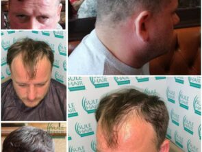 Sule Hair Transplant Before After 6.11.2020