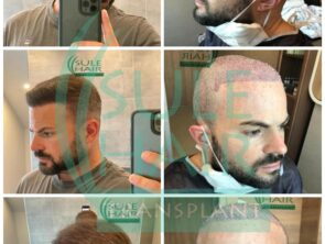 Sule Hair Transplant Before After 7.11.2020