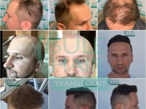 Sule Hair Transplant Before After 8.11.2020