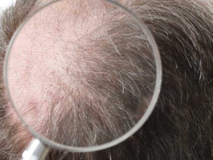 How Many Grafts Will I Require for Complete Hair Coverage?